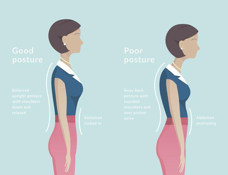 Ideale Haltung und gute Körperausrichtung können helfen..