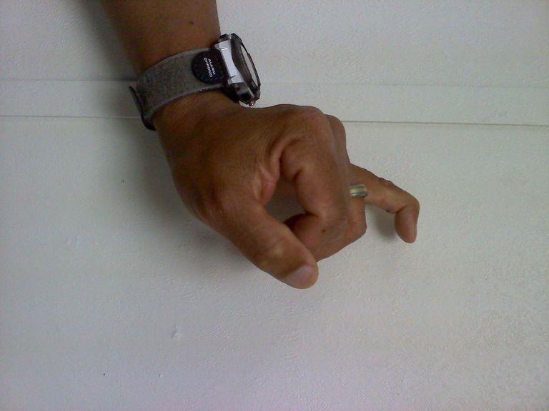 Was man über einen gebeugten Finger aufgrund eines Mallet ...